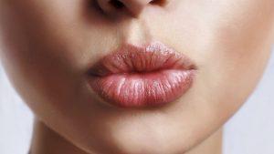 dudak uçuğu